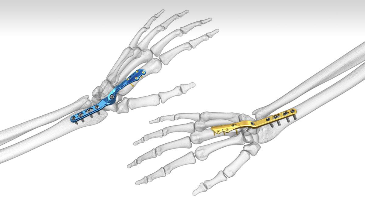 CPM Motorisierte Bewegungsschiene